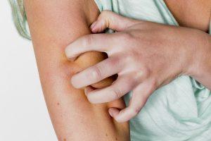 So erkennen und behandeln Sie Hautflechten