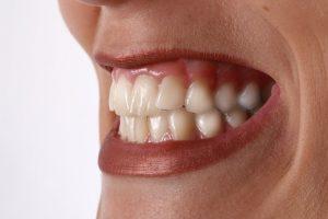 Zähneknirschen als Stresssymptom und was man dagegen tun kann