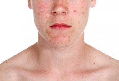 Akne vulgaris mit Vitalpilzen behandeln