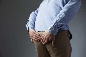 Wie Sie Hämorrhoiden homöopathisch behandeln