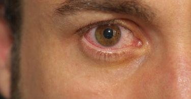 Wie Sie Bindehautentzündung homöopathisch behandeln