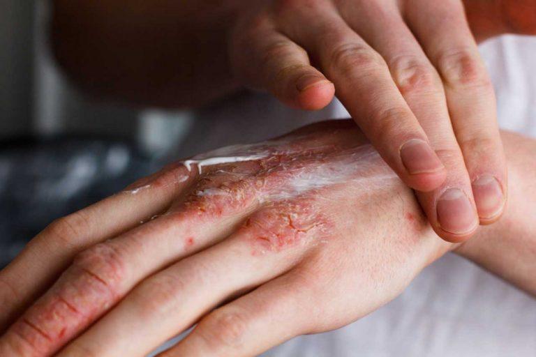 Rissige und raue Hände mit Schüßlersalzen behandeln