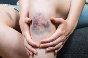 Diese homöopathischen Mittel helfen, wenn Sie schnell blaue Flecke bekommen
