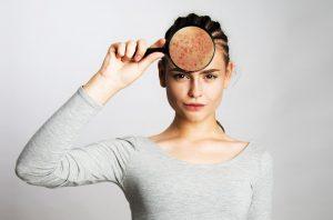 Das hilft Ihnen bei hormonell bedingten Hautproblemen