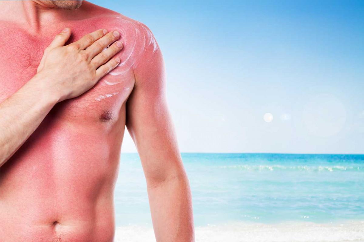 Diese 4 homöopathischen Mittel helfen bei Sonnenstich