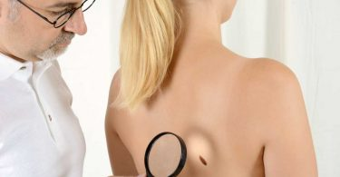 5 Merkmale an denen Sie Hautkrebs erkennen