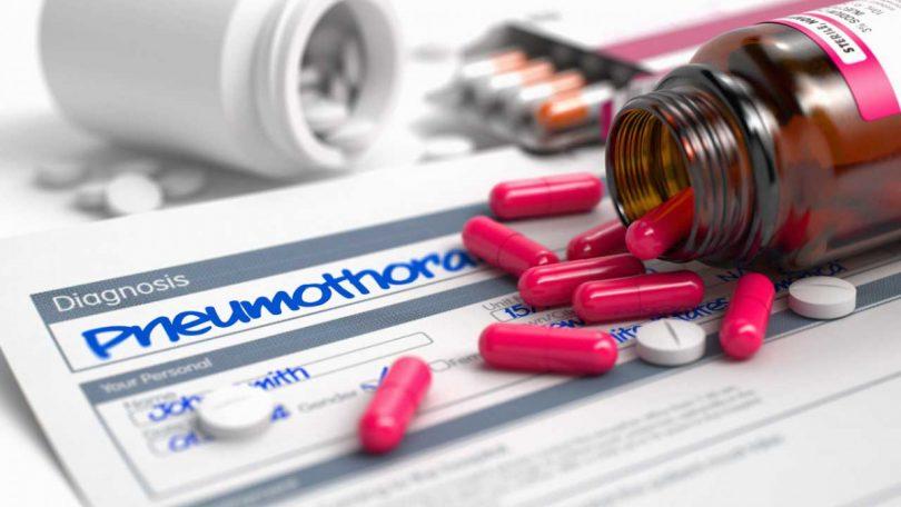 An diesen 5 Symptomen erkennen Sie einen Pneumothorax