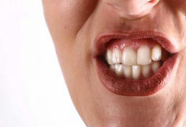 Schnelle Hilfe bei Zähneknirschen