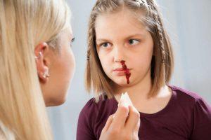 Ihr Kind hat häufig Nasenbluten: was Sie tun können