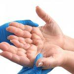 4 Ursachen für Rhagaden: So beugen Sie den schmerzhaften Hauteinrissen vor