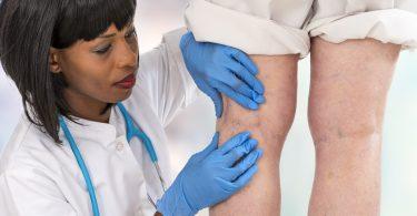 Venenentzündung: Kennen Sie diese 5 Fakten?