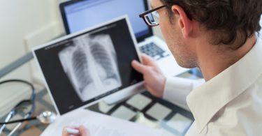 5 Symptome, die bei Lungenkrebs auftreten können