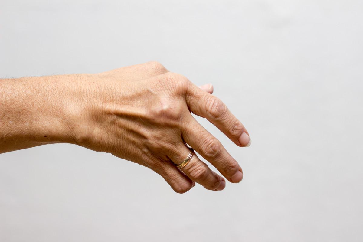 Rheuma: Diese 7 Symptome sind typisch