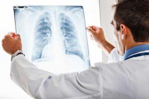 Lungenentzündung - 5 Fakten über diese häufige Infektionskrankheit