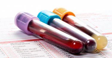 Zu wenig Leukozyten: Das kann der Laborwert bedeuten