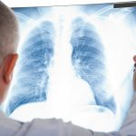 Diese 6 Symptome können bei Lungenkrebs auftreten