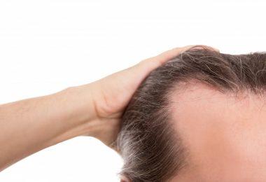 13 Arten des Haarausfalls