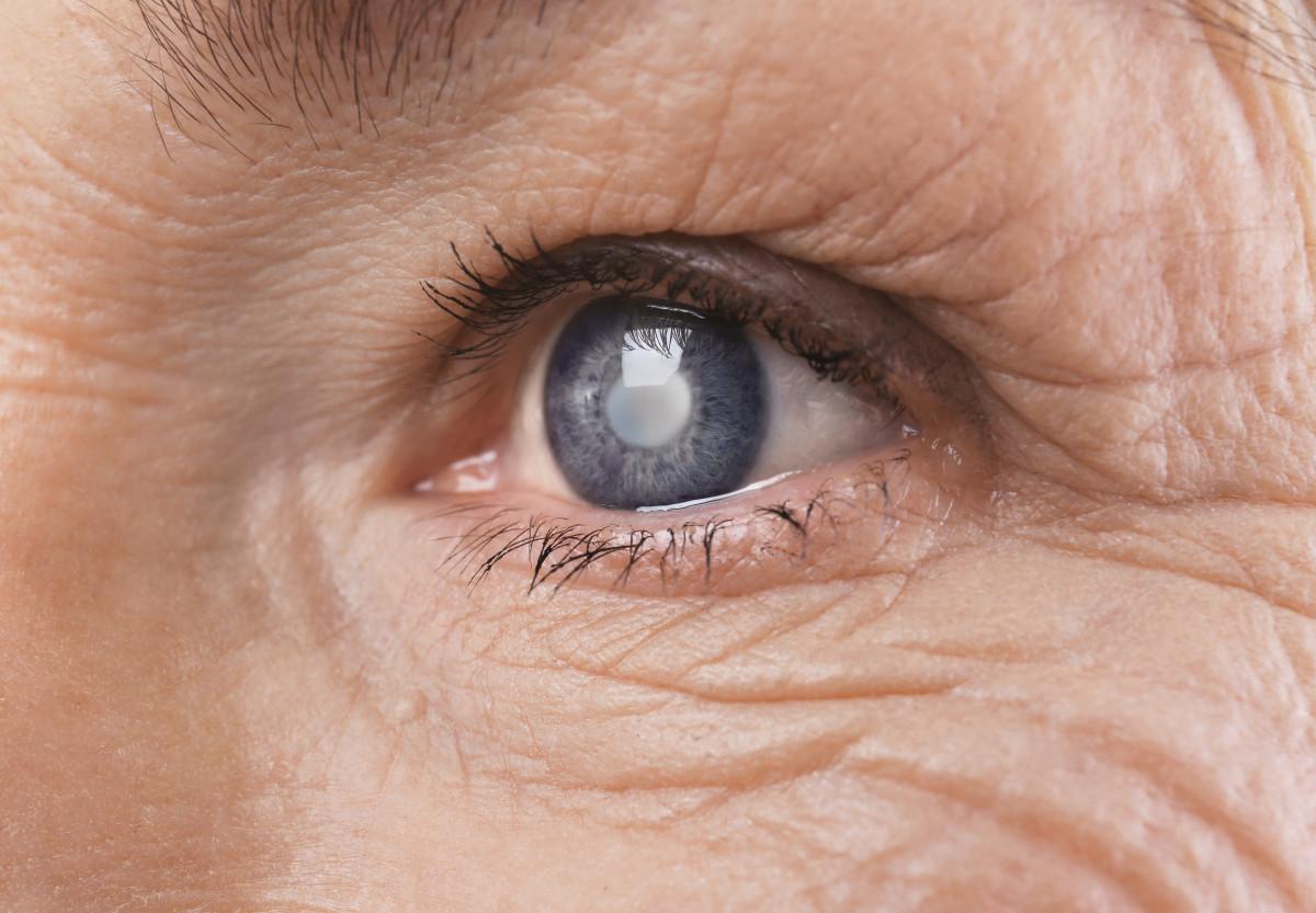 Augenerkrankungen: Diagnose und Ursachen des Grauen Stars