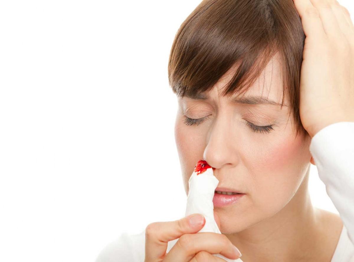 Die besten Tipps bei Nasenbluten