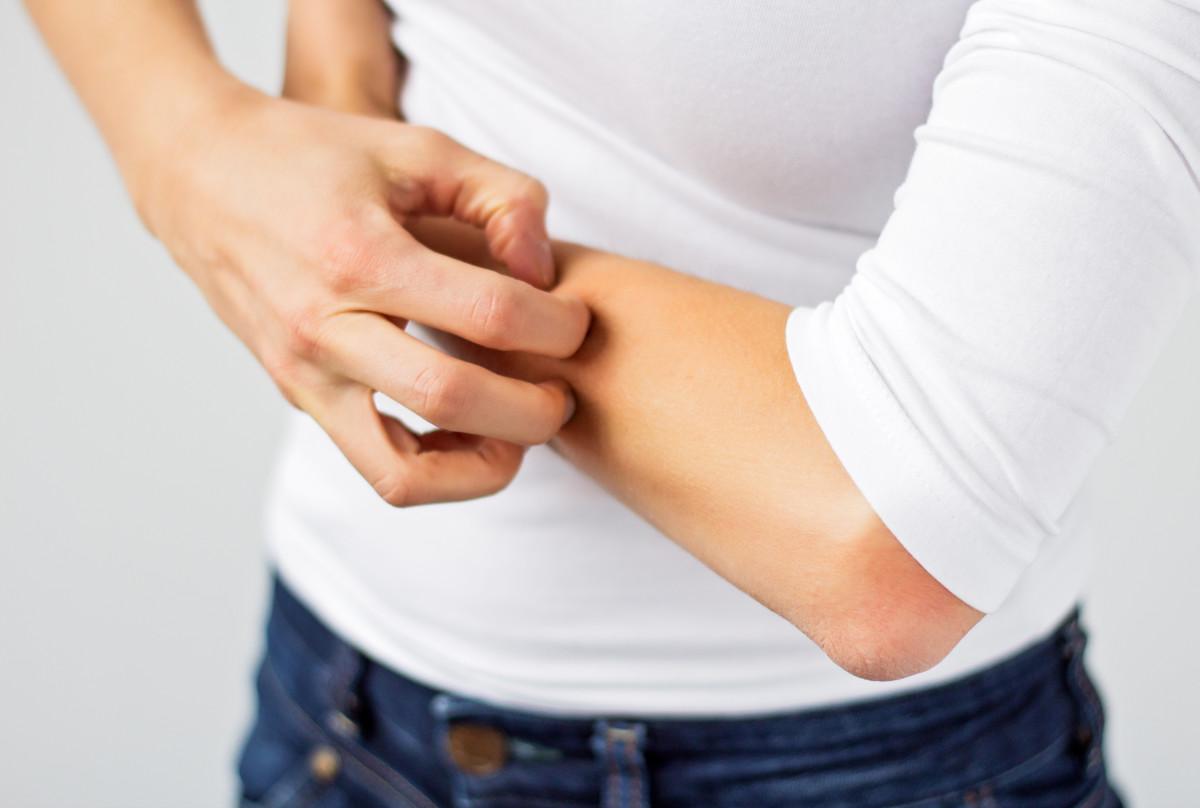 5 homöopathische Mittel gegen Juckreiz