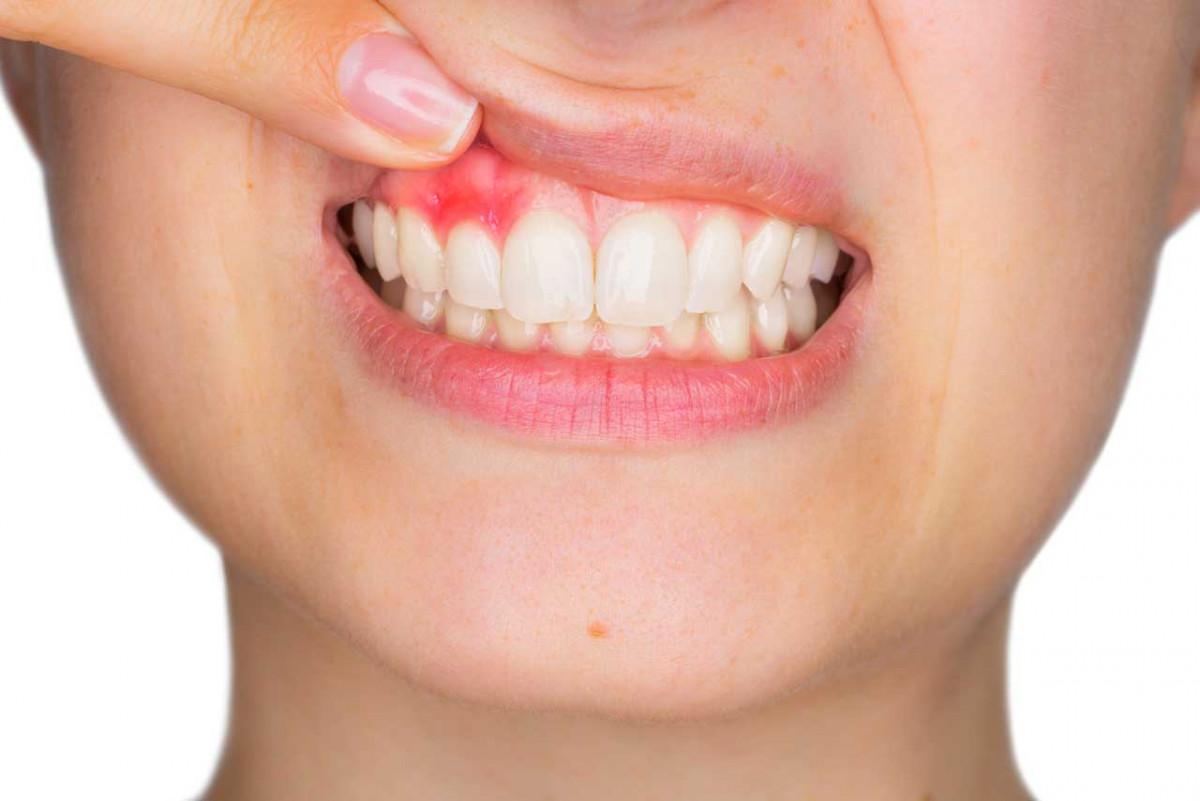 Diese Hausmittel helfen Ihnen bei Zahnfleischentzündungen