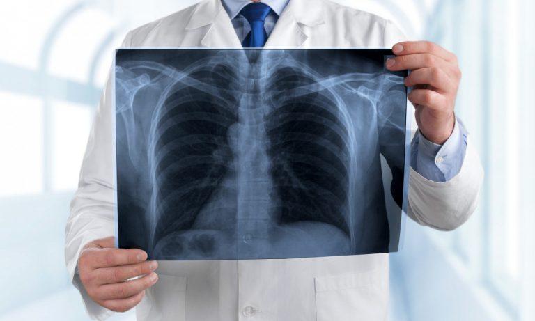 Lungenentzündung: Ursachen, Symptome und Folgen