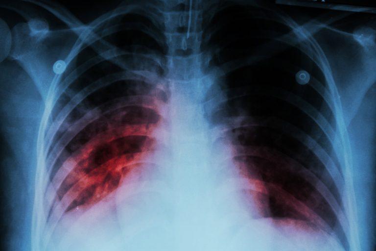 Lungenentzündung: Behandlung und Vorbeugung