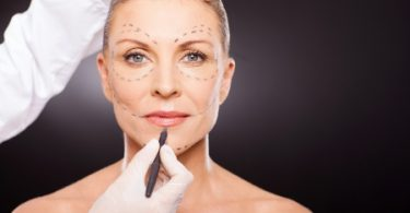 Das sollten Sie vor Ihrer ersten Schönheitsoperation wissen
