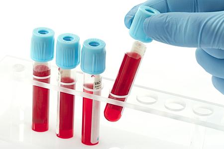 Triglyceride: Kein Cholesterin, aber trotzdem heimliches Risiko