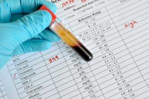 Cholesterinspiegel zu hoch: Bedeutung der Diagnose