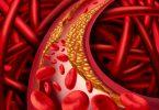 Cholesterin – was ist das? Ein kleiner Exkurs in den Körper!