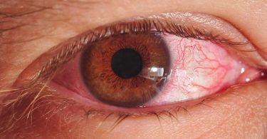 Alles über Bakterien im Auge