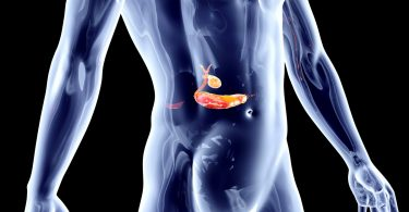 Schmerzhafte Erfahrung mit Folgen: die Gallenkolik