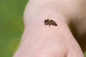 So behandeln Sie einen Bienenstich richtig