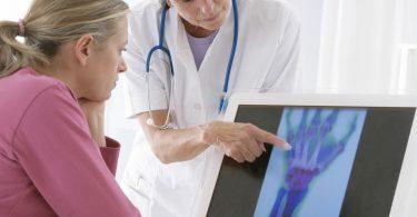 Erhöhtes Risiko: Wer an Arthrose erkrankt