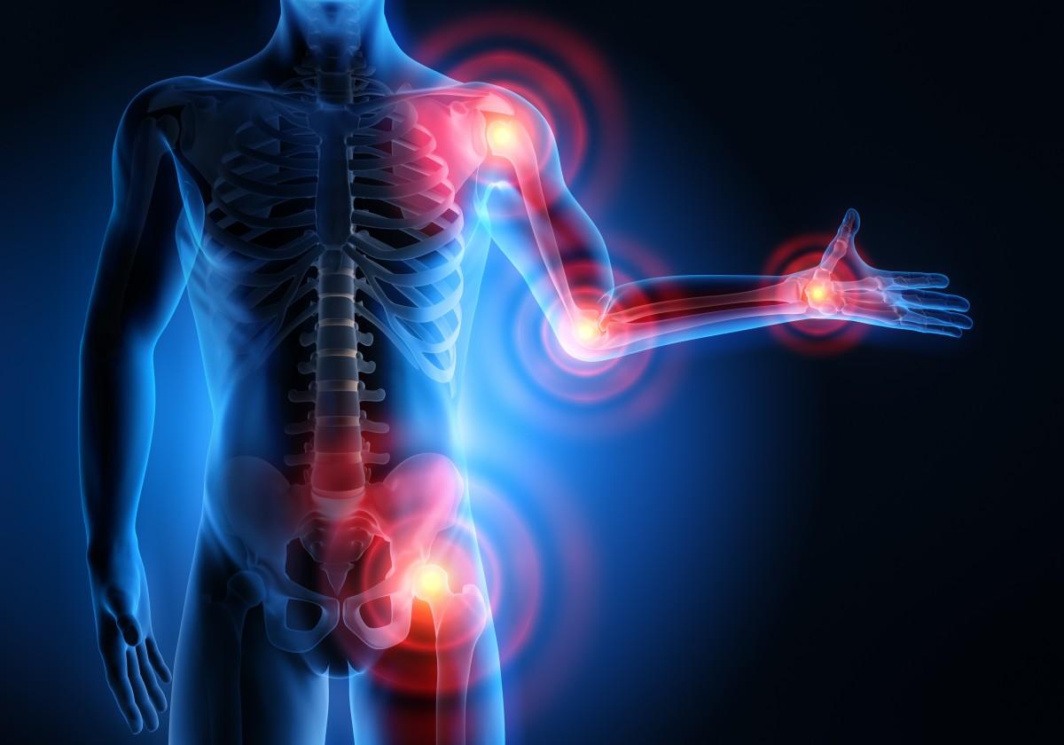 Arten der Arthrose: Vom Zeh bis zur Schulter