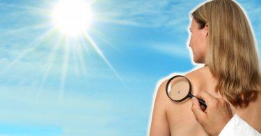 Risikofaktoren für Hautkrebs erkennen und rechtzeitig handeln!