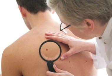 Heimliche Gefahr Hautkrebs – die häufigste Krebsart bleibt oft lange unentdeckt