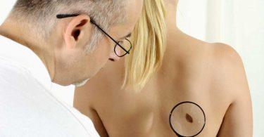 Die richtige Wahl ist wichtig: Spezialisierte Ärzte machen Hautkrebs-Screening