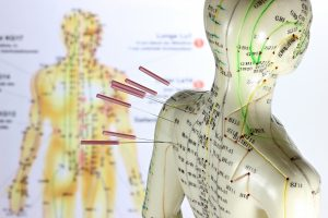 Elektroakupunktur gegen Bluthochdruck: Forschung an alternativen Methoden