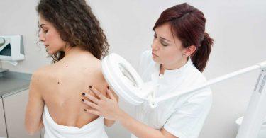 Die Untersuchung im Detail – was passiert beim Hautkrebs-Screening?