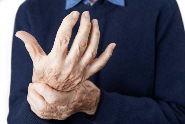 Schmerzmittel gegen Arthritis fördern Bluthochdruck