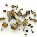 Kein Stein muss sein: Ernährung bei Nierensteinen