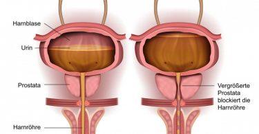 Prostatavergrößerung – Was macht der Urologe?