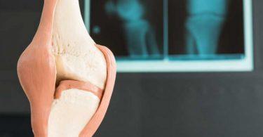 Definition und Krankheitsverlauf einer Arthrose