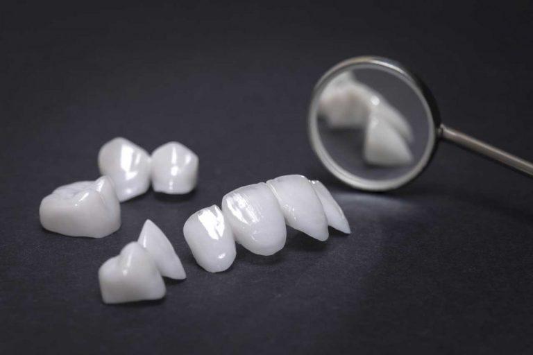 Veneers: So lassen Zahnverblendungen Ihr Lächeln strahlen