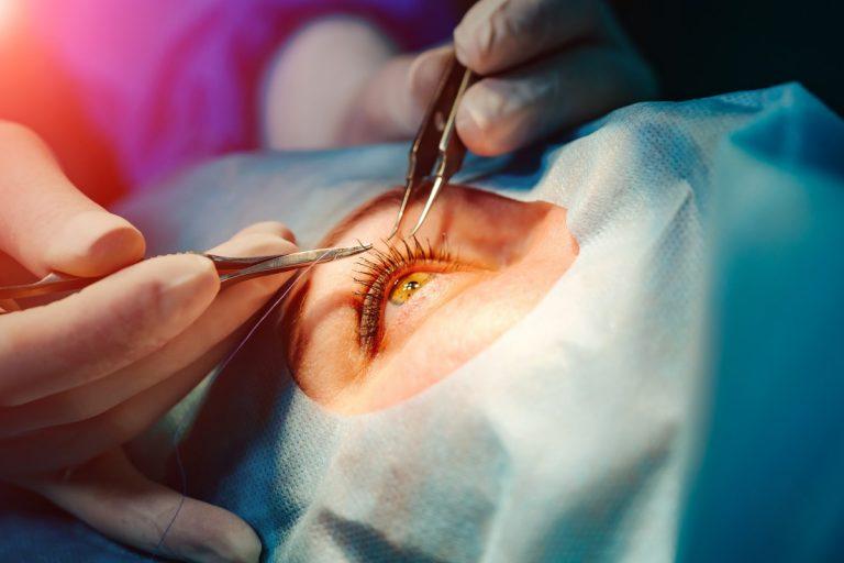 Augenlasern im Ausland: Das sollten Patienten wissen