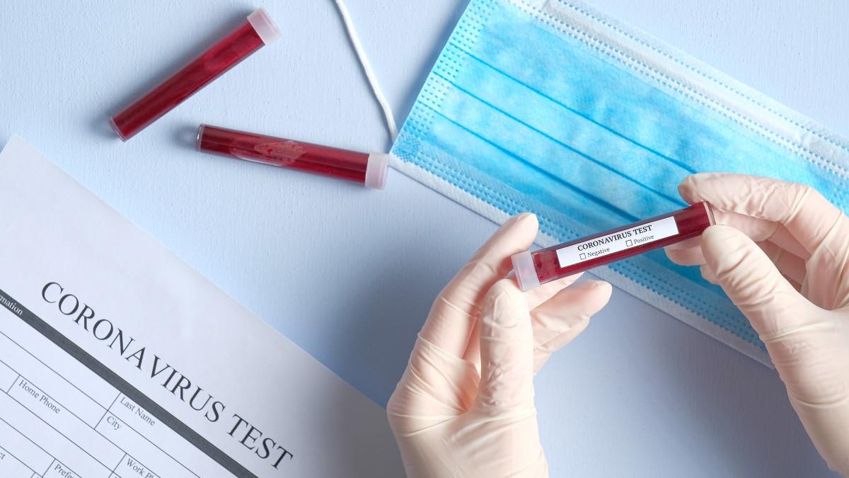 Corona-Virus und Hygiene am Arbeitsplatz: So sieht sinnvolle Vorbeugung aus