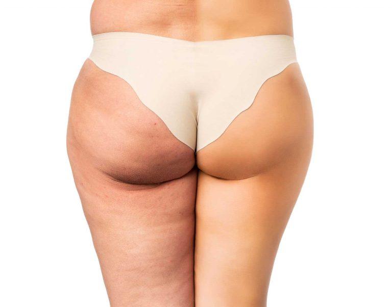 Anti Cellulite Pflege zum Selbermachen